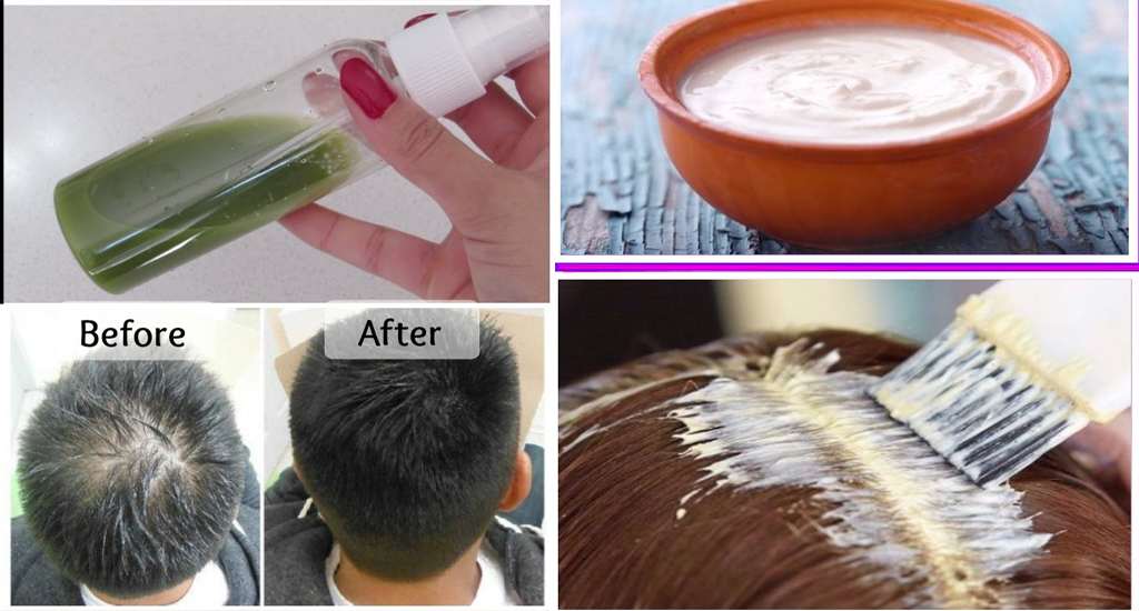 Photo of Top 5 Natural Hair Pack Tips for Hair Loss Benefits in the Week